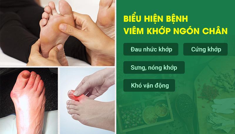 Biểu hiện của bệnh viêm khớp ngón chân