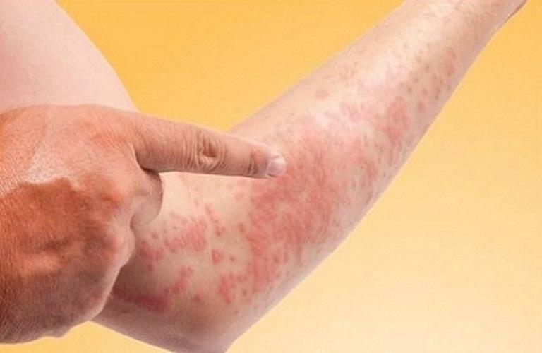 các bệnh về da gây ngứa