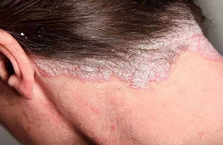 vảy nến là một trong số các bệnh về da gây ngứa