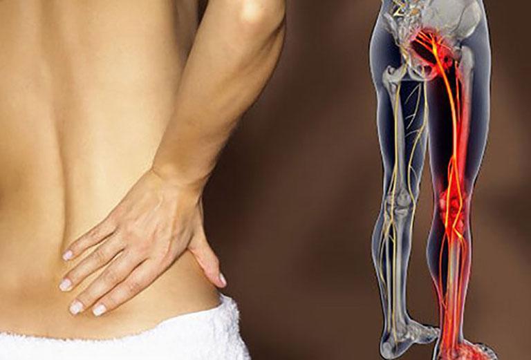 Châm cứu giúp giảm nhanh cơn đau thần kinh tọa và giúp phục hồi vận động của chi dưới