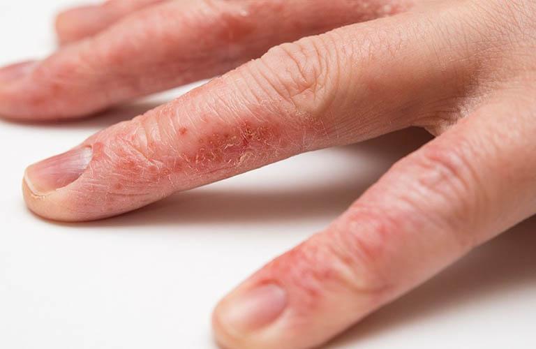 Triệu chứng chàm khô đầu ngón tay