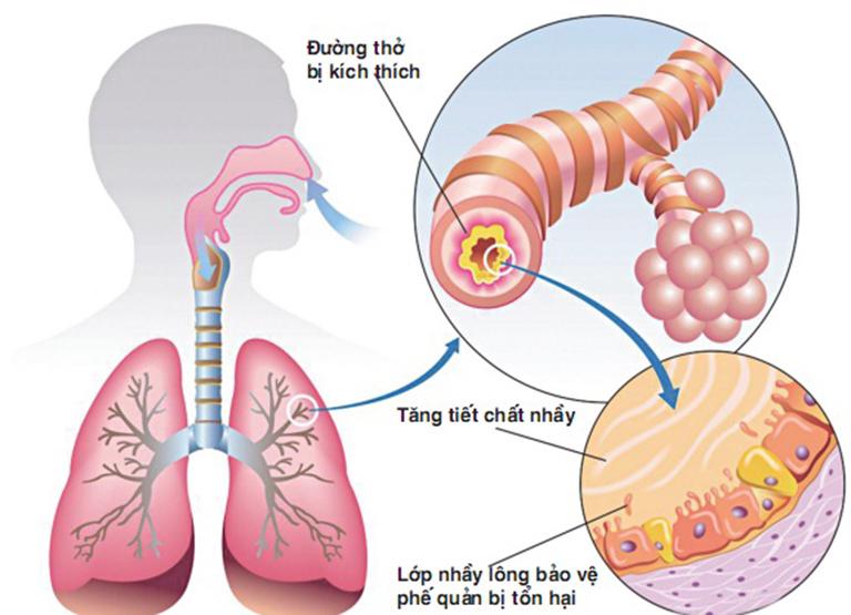 Viêm phế quản mãn tính với đặc trưng là tiết chất nhày ở ống phế quản