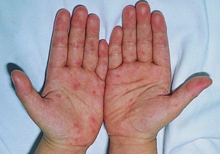 Các triệu chứng của tổ đỉa được cải thiện nhờ dùng tỏi
