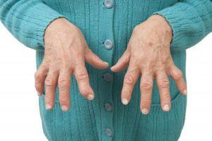 chữa viêm khớp dạng thấp bằng thuốc nam