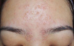 da mặt nổi mụn nước