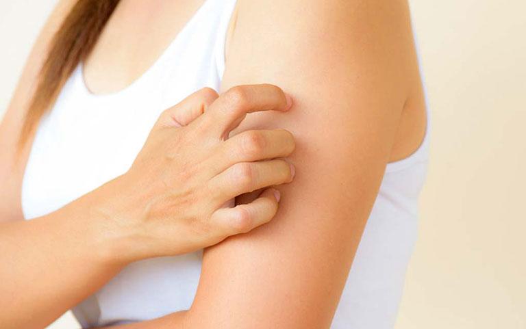 nguyên nhân khiến da bị nổi mề đay mẩn ngứa sau khi tắm