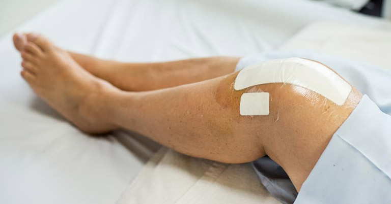 Điều trị viêm màng bao hoạt dịch khớp gối