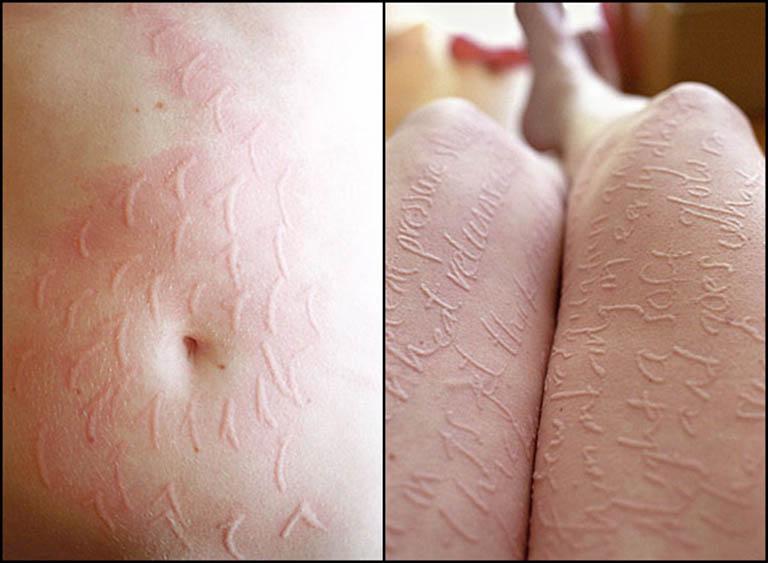 Mề đay vẽ nổi trên da