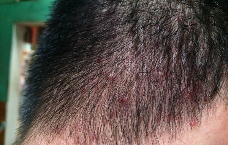 ghẻ, bệnh lý gây ngứa da đầu phổ biến