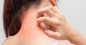 Chức năng thận suy giảm khiến độc tố tích tụ trong cơ thể cũng có thể gây ngứa toàn thân.