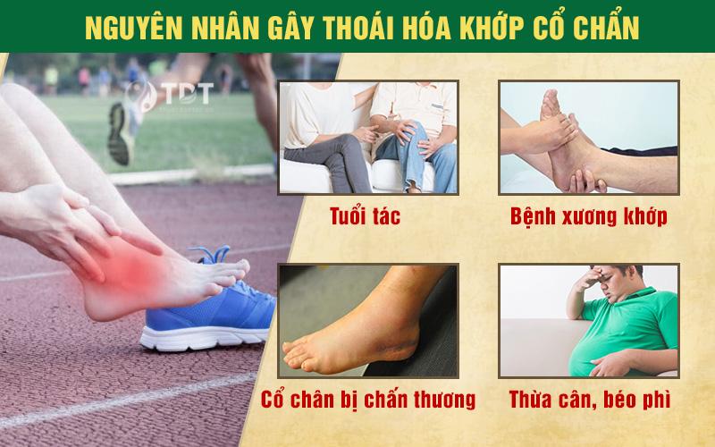 nguyên nhân gây thoái hóa cổ chân