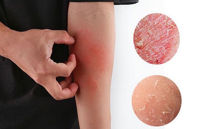 Eczema là một trong số các bệnh về da gây ngứa