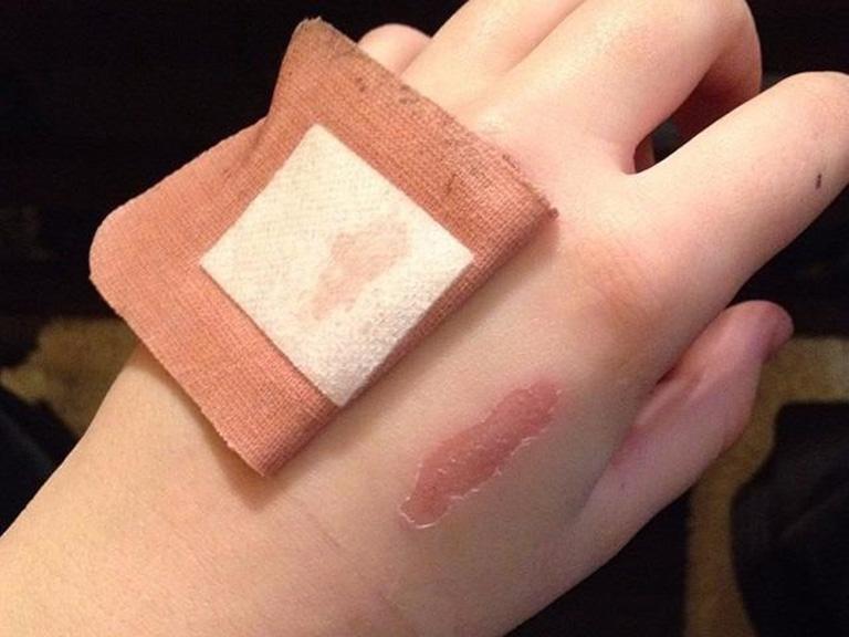 Nhận biết dấu hiệu nhiễm trùng vết thương