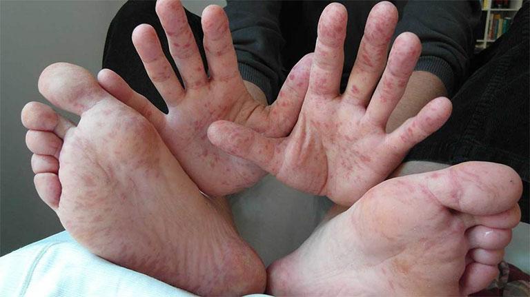 Nổi mẩn ngứa ở chân tay