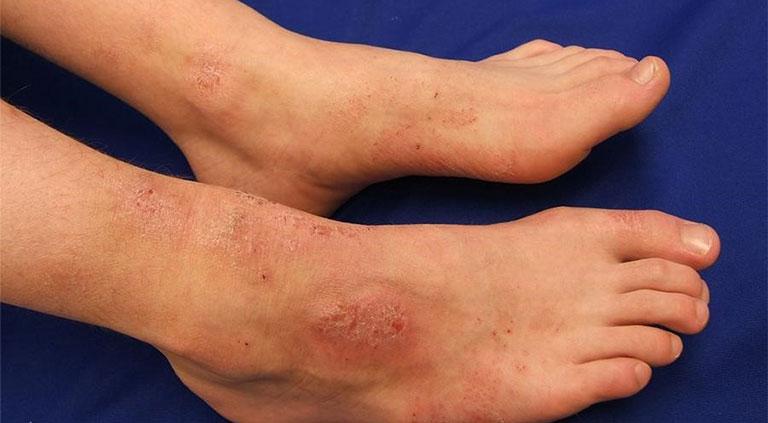 tay chân nổi mẩn ngứa