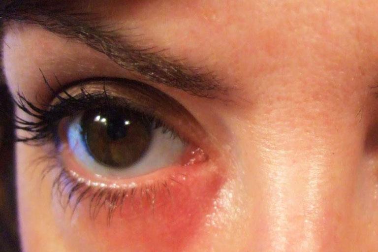 Mề đay mẩn ngứa quanh mắt