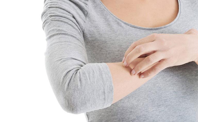 nổi mụn nước ngứa ở cánh tay là bệnh gì