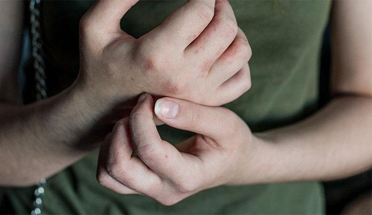 mụn nước ngứa ở tay gây ngứa