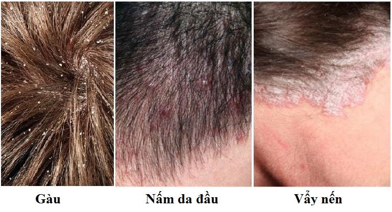 phân biệt nấm da đầu – gàu – vẩy nến