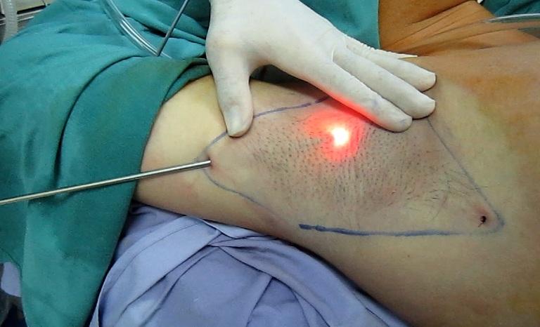 Phẫu thuật điều trị bệnh hôi nách