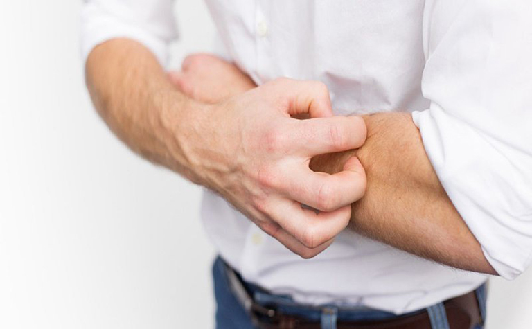 Bệnh gây ngứa ngáy khó chịu cho người bệnh