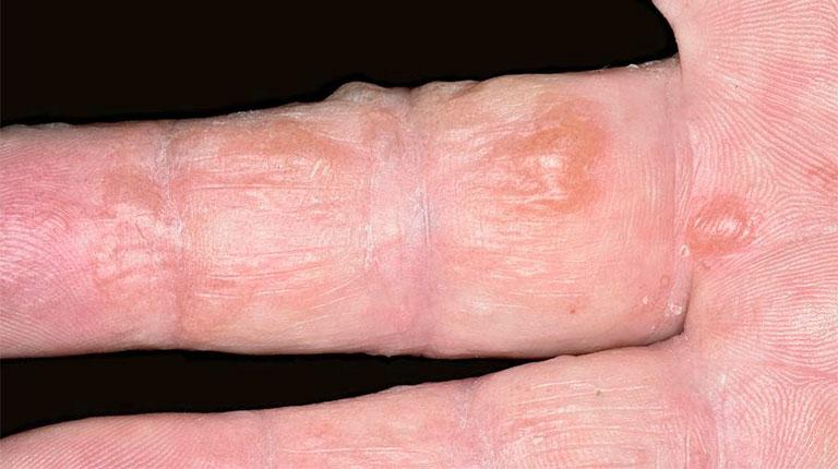 Pompholyx gây mụn nước ở tay