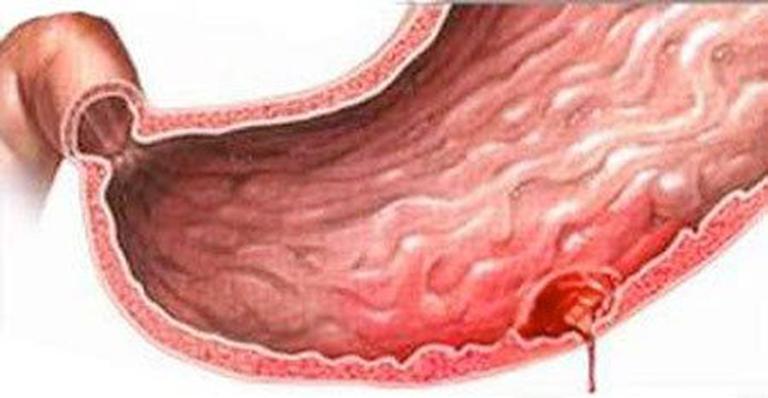 Biến chứng thủng dạ dày gây nguy hiểm đến tính mạng