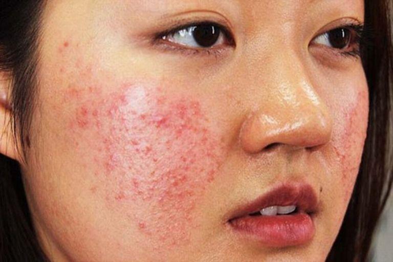 triệu chứng dị ứng nổi mẩn đỏ trên mặt