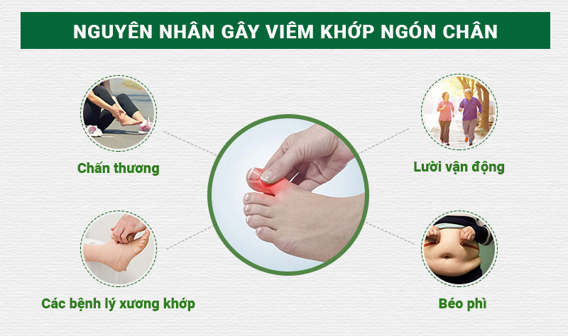 Nguyên nhân gây bệnh viêm khớp ngón chân