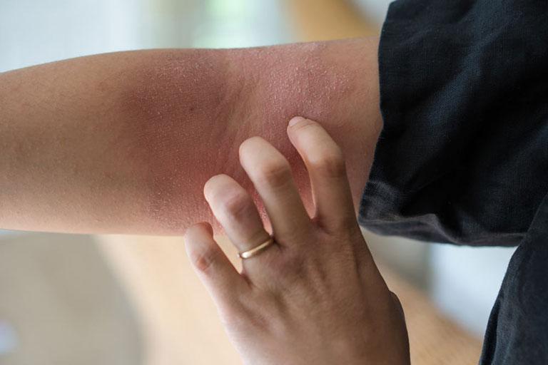 Bệnh viêm da cơ địa ở tay mãn tính và khó chữa