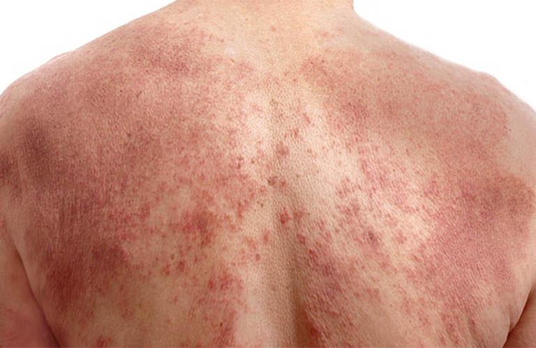bệnh viêm da cơ địa có để lại sẹo không