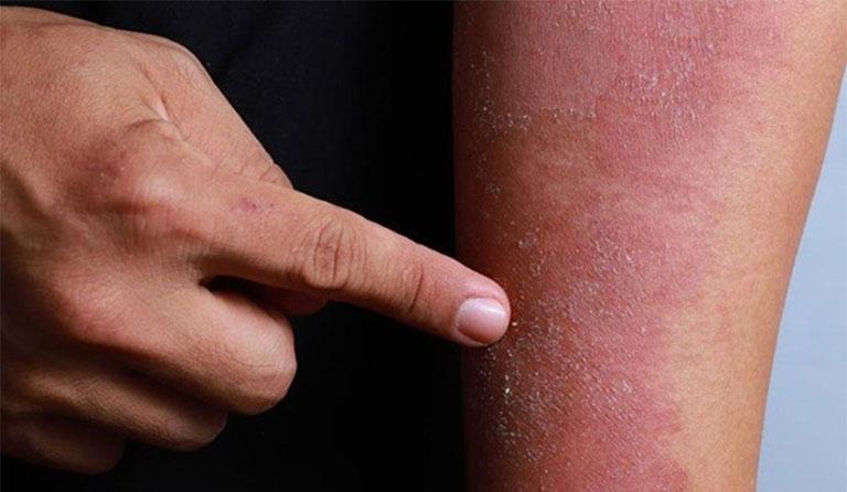 viêm da cơ địa có thể để lại sẹo
