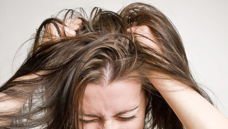 dấu hiệu nhận biết viêm da dầu ở đầu