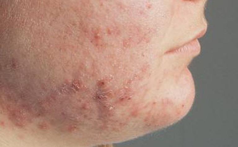 bệnh viêm da dị ứng ở mặt