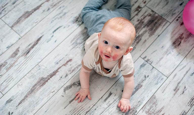 viêm da dị ứng ở trẻ em là gì