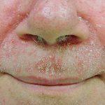 viêm da tiết bã nhờn ở mặt