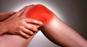Viêm khớp phản ứng thường gây sưng đau ở các khớp chi dưới
