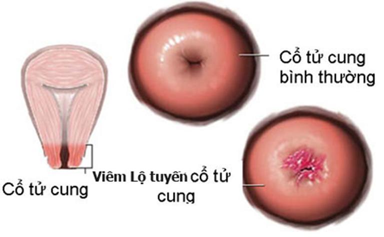 Huyết trắng lẫn máu - dấu hiệu bệnh viêm lộ tuyến tử cung