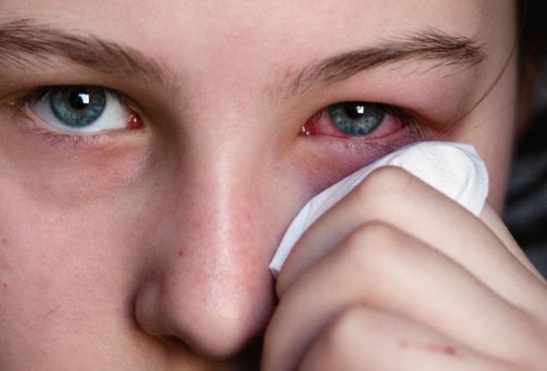 Viêm mắt dị ứng thời tiết gây nguy hiểm