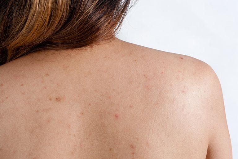 cách trị viêm nang lông ở lưng