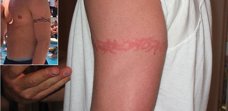 Viêm da tiếp xúc với hình xăm Henna