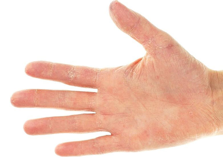 viêm da tiếp xúc kích ứng khiến da khô, ngứa
