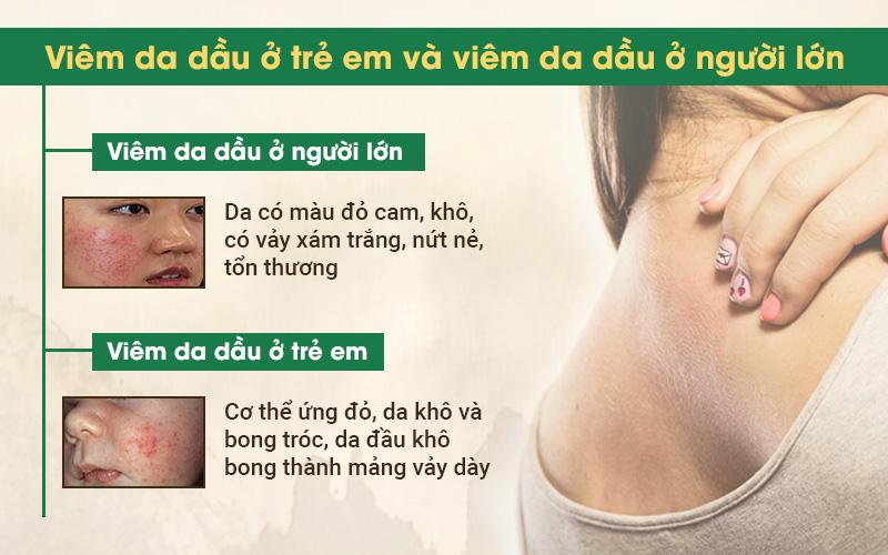 Viêm da dầu có thể xảy ra ở cả người lớn và trẻ em