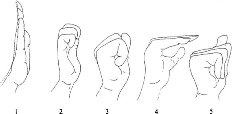 bài tập cho hội chứng ống cổ tay