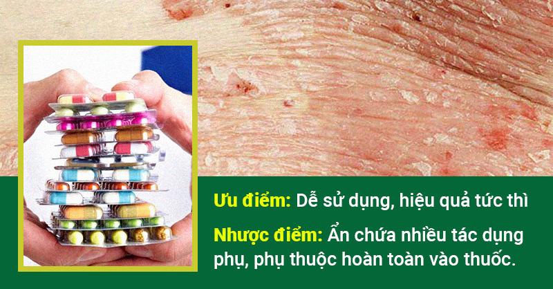 Điều trị vẩy nến bằng tây y