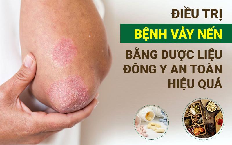 Điều trị bệnh vảy nến bằng dược liệu Đông y an toàn, hiệu quả