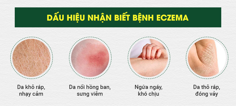 Dấu hiệu nhận biết bệnh eczema