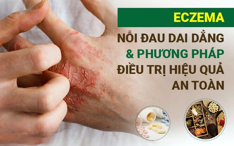 Eczema - Nỗi đau dai dẳng & phương pháp điều trị hiệu quả, an toàn