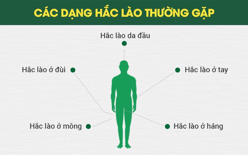 Hắc lào có thể gặp ở nhiều vị trí khác nhau trên cơ thể