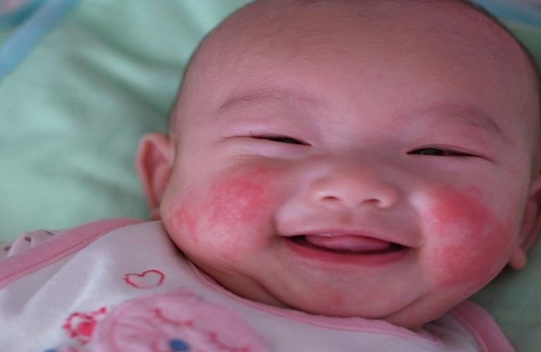 bé sơ sinh bị nổi mẩn đỏ ở mặt